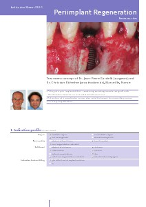 PIR1 - Periimplant Regeneration, Fenestration