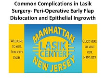 Common Complications in Lasik Surgery- Peri-Operative Early Flap Dislocation and Epithelial Ingrowth