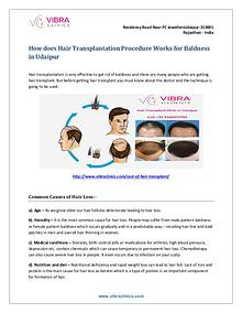 How does Hair Transplantation Procedure Works for Baldness in Udaipur