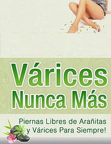VARICES NUNCA MAS LIBRO GRATIS