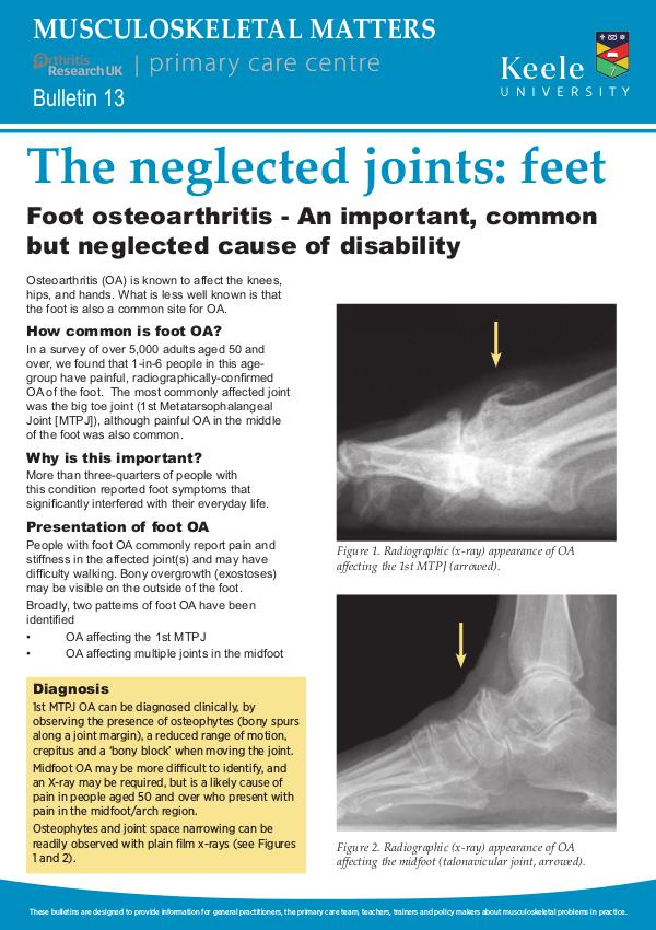 Musculoskeletal Matters 13: The neglected joints: feet
