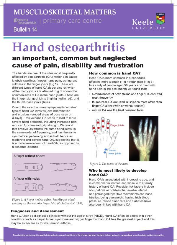 Musculoskeletal Matters 14: Hand Osteoarthritis