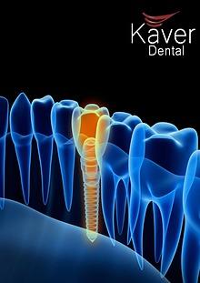 Kaver Dental Clinic